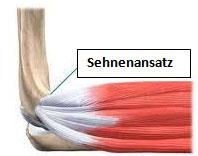 Sehnenansatz der Unterarmmuskulatur