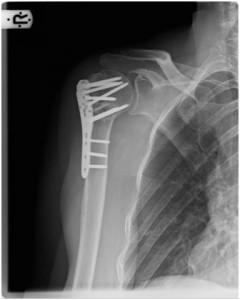 Stabilisierung einer subcapitalen Oberarmfraktur mit Platte