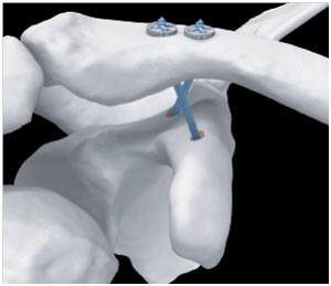 AC-TightRope®-System (Quelle: Arthrex)